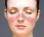 Lupus facial rash in a typical wolf-like distribution.