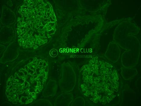 detection of anti-gbm antibodies with indirect immunofluorescence on monkey kidney